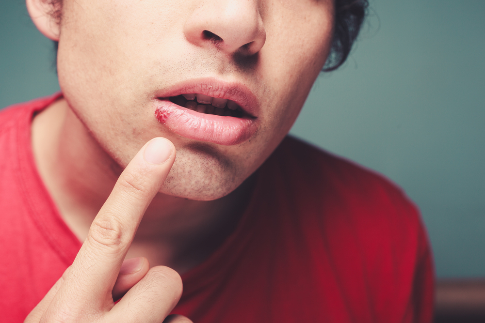 man pointing at cold sore on lower lip