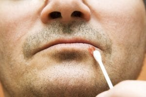man treating cold sore on lower lip