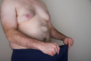 obesity and erectile dysfunction